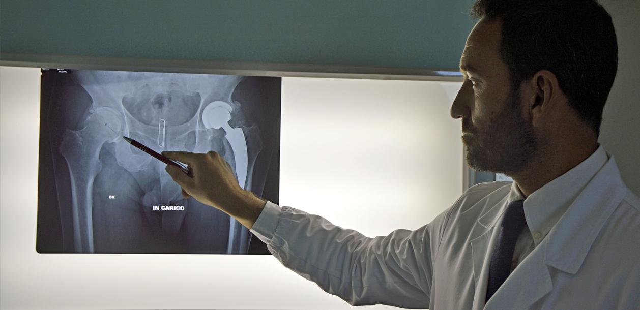 Soluzioni avanzate per le protesi all'anca
