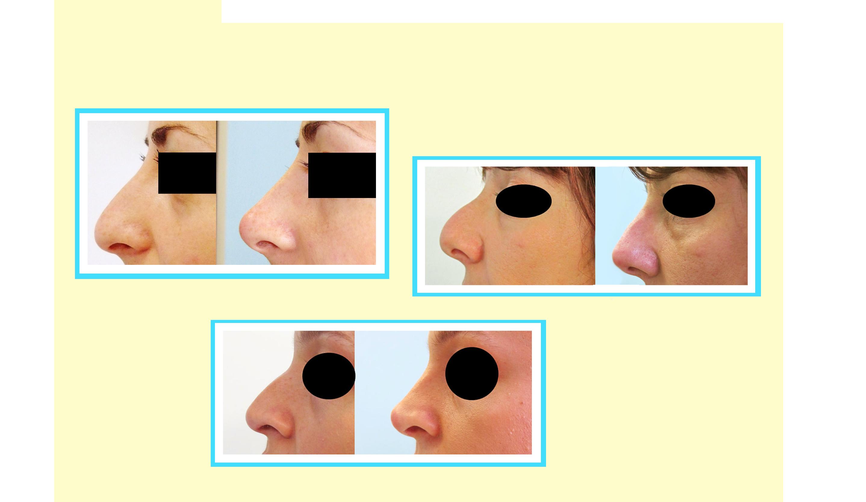 all Il Rinofiller: come migliorare il naso senza bisturi