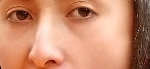 Il Rinofiller: come migliorare il naso senza bisturi