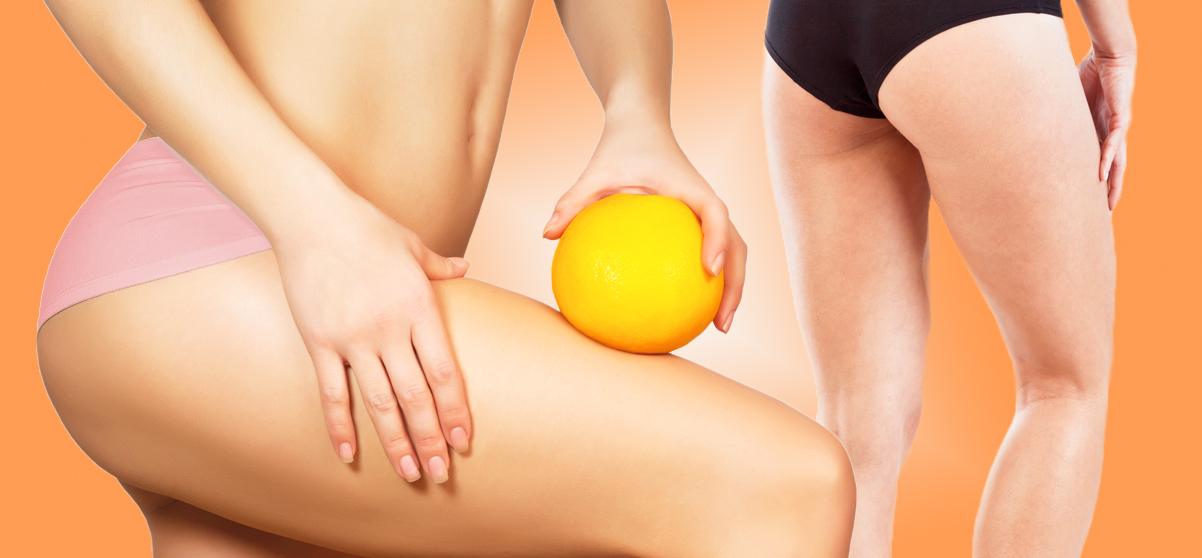 Curare la cellulite si può? Si, con la carbossiterapia