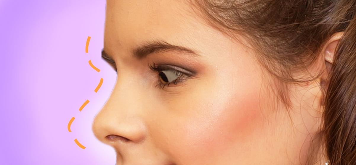 Rinofiller: finalmente un naso senza gobbe