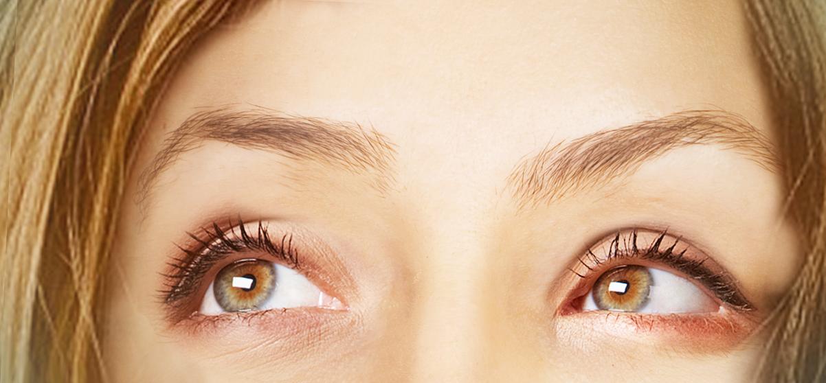 Microlipofilling: come ringiovanire il viso con il grasso in eccesso