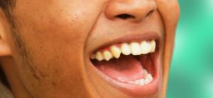 faccette dentali cura ed estetica