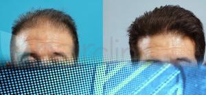 alopecia imm cliente s