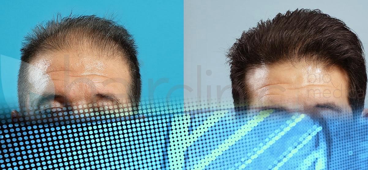 Alopecia, curabile intervenendo in modo completo