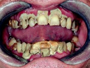 Fig. 3: Gengivite da presenza massiccia di tartaro con compromissione parodontale