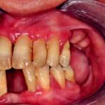Fig. 6: Iperplasia gengivale aziente affetto da epilessia in ciclosporina in soggetto con terapia con difenilidantoina