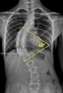 Scoliosi idiopatica nell'adolescente: descrizione | DossierSalute.com