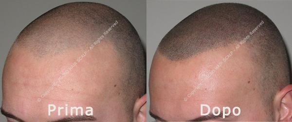 Effetto rasato con tricopigmentazione permanente: da necessità a moda