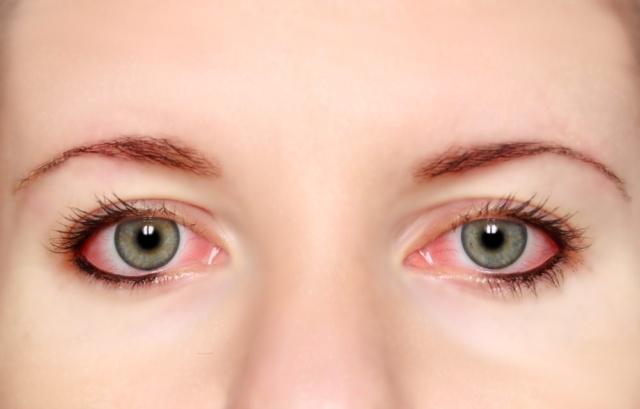 Occhio alla congiuntivite allergica!