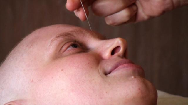 I cinque benefici dell'agopuntura per i pazienti oncologici