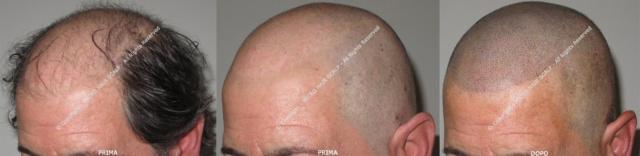 Protesi per capelli, la stagione giusta per dire basta