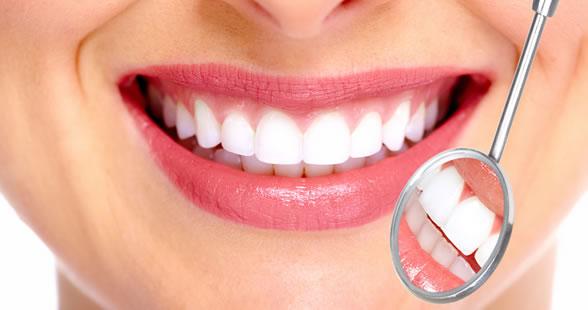 Denti bianchi? Scegli lo sbiancamento che fa per te