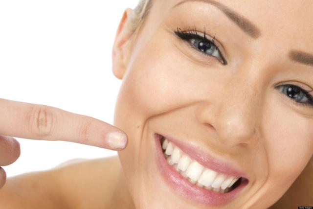 Sbiancamento dentale, rapido ed efficace