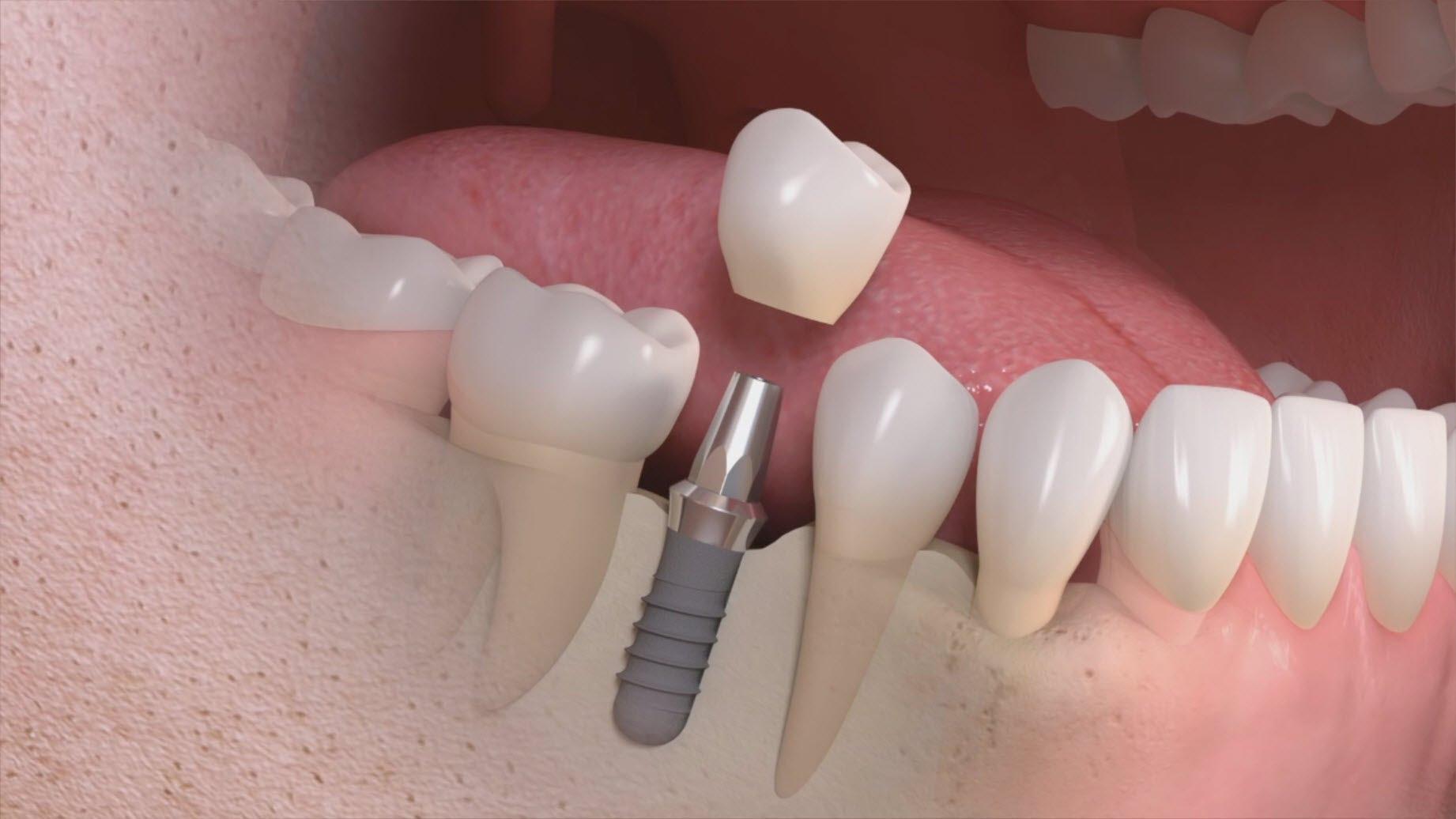 Impianti dentali: la scelta è fondamentale
