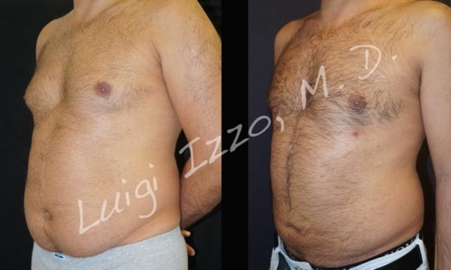 Ginecomastia, quando il seno è un problema maschile