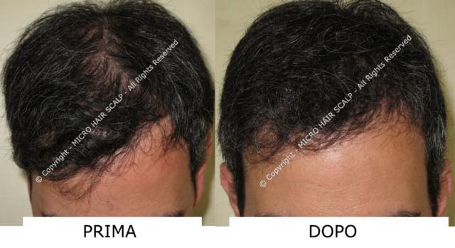 Alopecia, tante le cause e non del tutto note