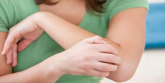 Soffri di prurito? Potrebbe trattarsi di scabbia