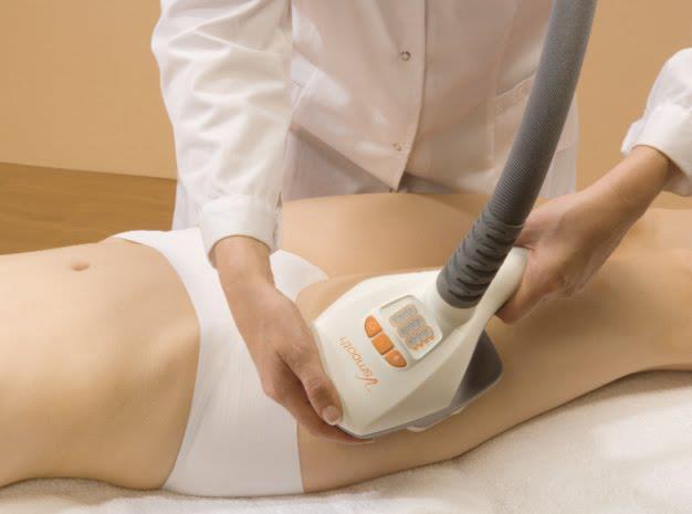 Velashape, soluzione non chirurgica per il rimodellamento corporeo