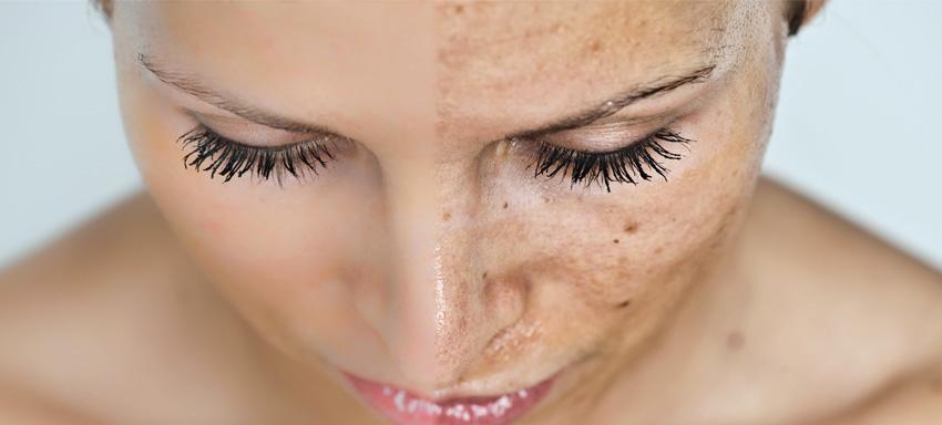 Pigmentazioni senili: come eliminare i segni dell'invecchiamento