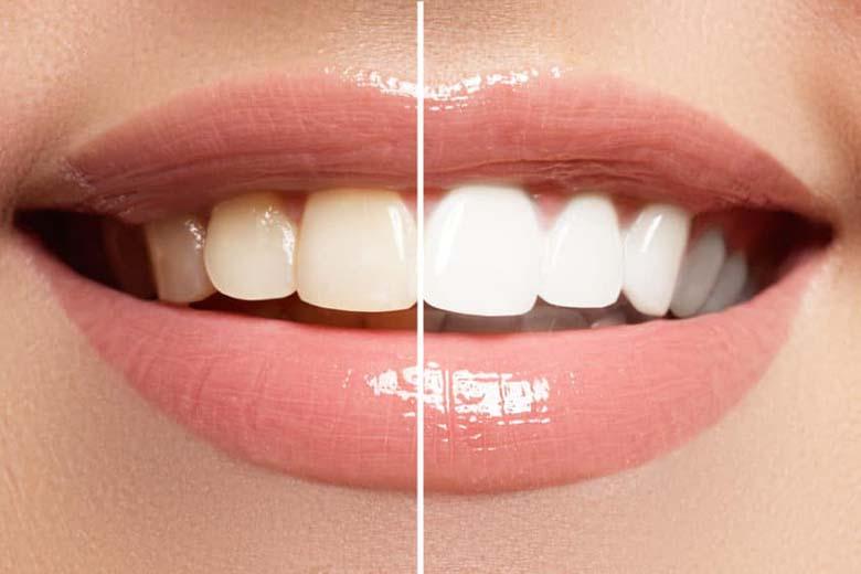 Benessere dei denti: come mantenerli bianchi nel tempo