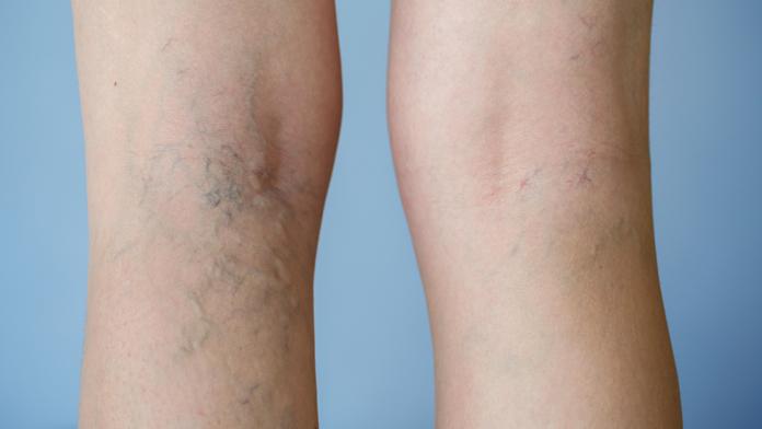 Fragilità capillare: cause e rimedi