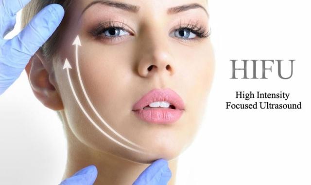 Lifting non invasivo con la tecnologia HIFU