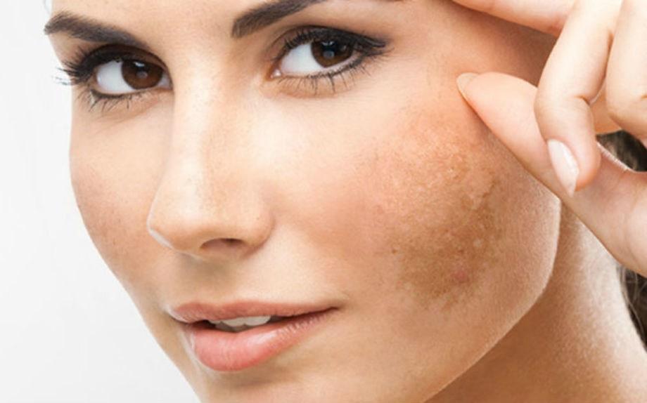 Macchie della pelle: cause, trattamenti, prevenzione
