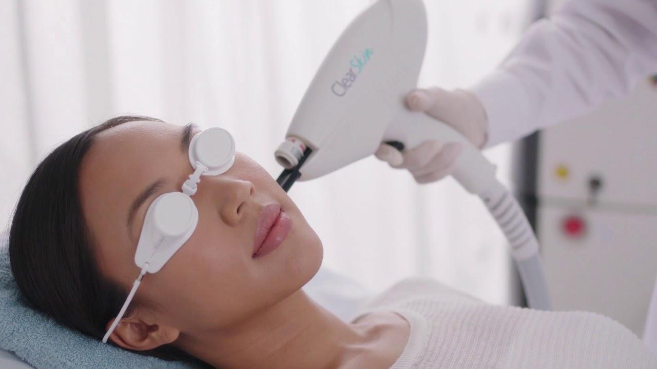 Clear Skin Laser: la soluzione all'acne di Avenir