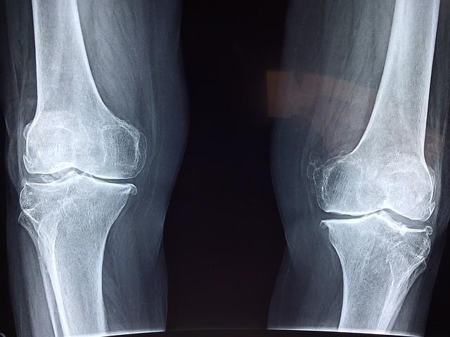 Dolori alle ginocchia: cosa si può fare agendo sulla postura