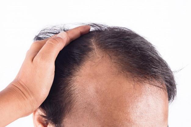 Dieta, microbiota e caduta dei capelli: intreccio indissolubile