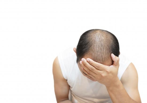 Plasma Ricco di Piastrine (PRP) contro calvizie, alopecia e caduta di capelli