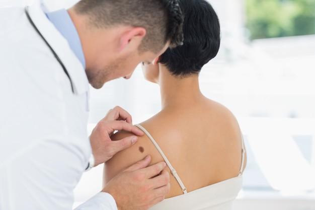 Controllo periodico dei nei: atto di prevenzione efficace