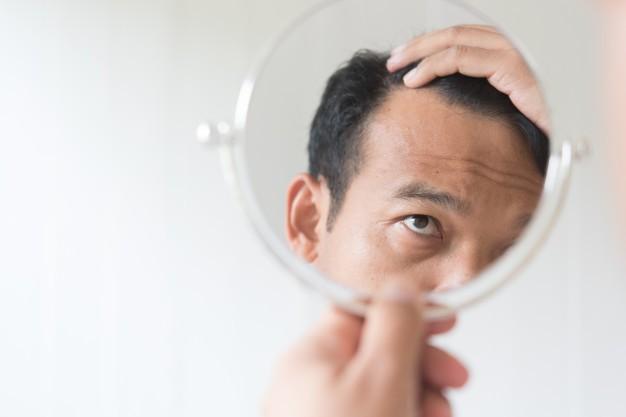 La terapia cellulare per stimolare la ricrescita dei capelli