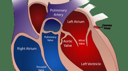 TAVI, impianto di valvola aortica all'avanguardia