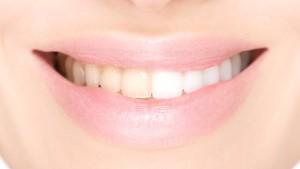 Denti bianchi dai rimedi fai da te ai trattamenti professionali