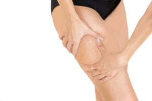 I tre stadi della cellulite: rischi, prevenzione e cura