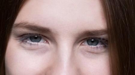 Occhiaie scure cosa sono, le cause, i rimedi