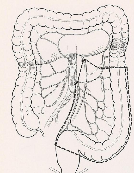 Diverticolosi e diverticolite del colon cause, evoluzione e terapie