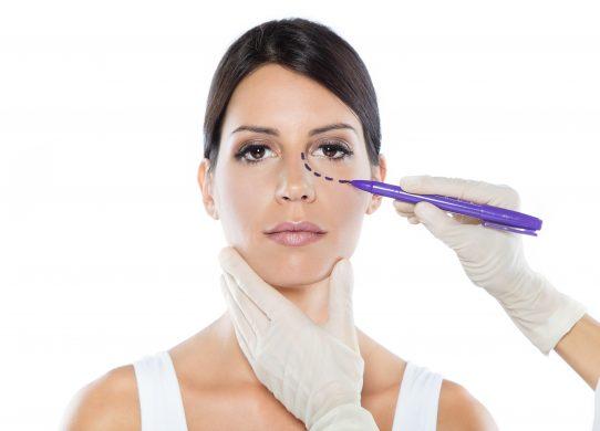 5 domande sulla blefaroplastica il trattamento per uno sguardo nuovo, più giovane e vivace
