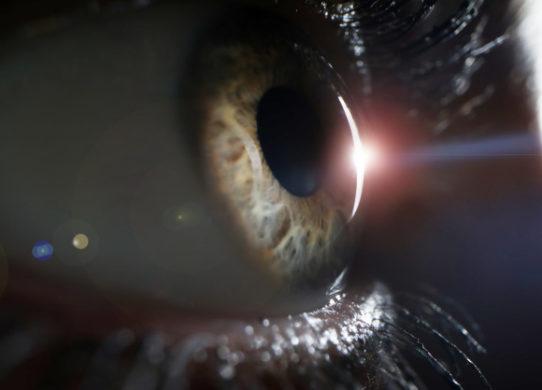 Chirurgia refrattiva addio ad occhiali e lenti a contatto