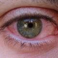 Congiuntivite da coronavirus occhi fonte di contagio