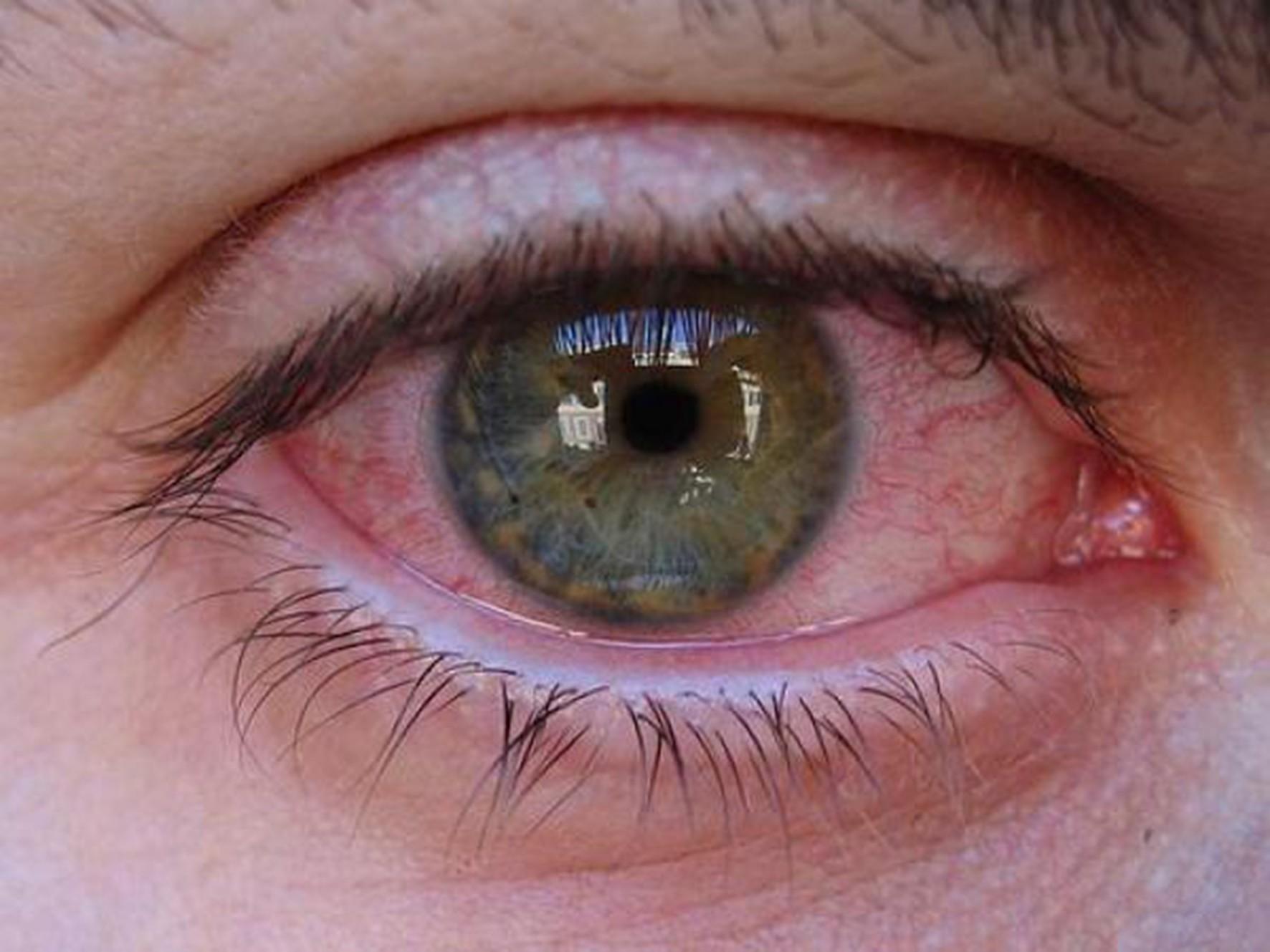 Congiuntivite da coronavirus: occhi fonte di contagio?