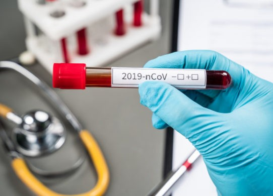Coronavirus e Remdesivir speranza concreta