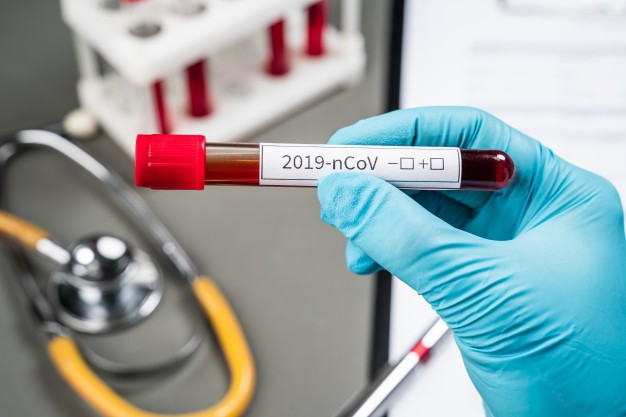 Coronavirus e Remdesivir: speranza concreta