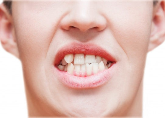 Denti storti cause e trattamenti