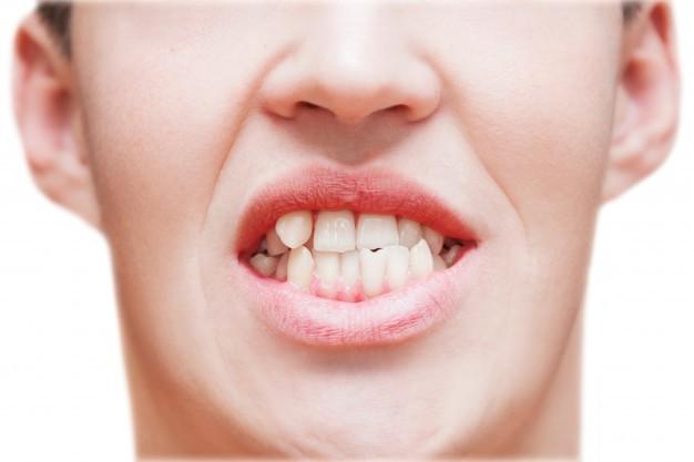 Denti storti: cause e trattamenti