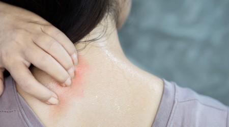 Dermatite da sudore attenzione alla pelle quando si fa sport