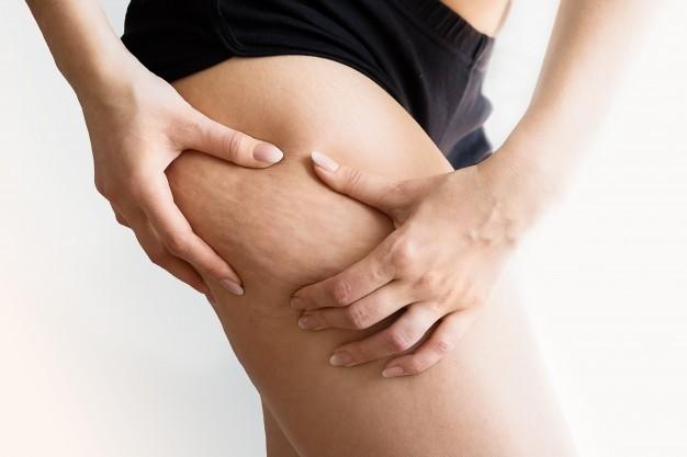 Eliminare la cellulite con la medicina estetica