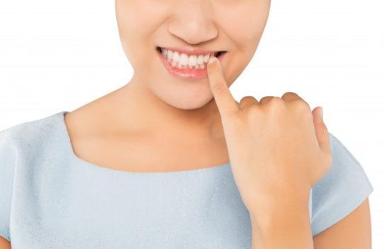 Gengivite e parodontite come evitarle